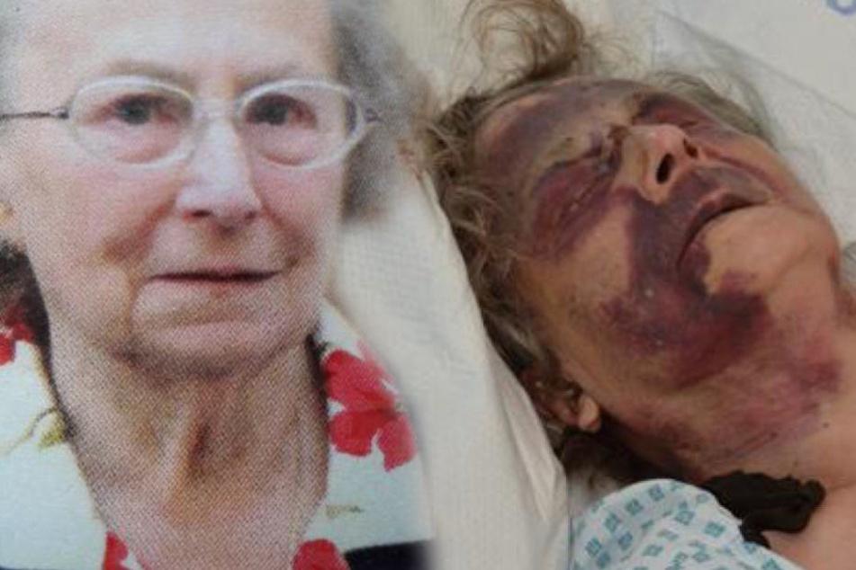 Abscheuliche Tat: 90-jährige Frau in eigenem Bett fast zu Tode geprügelt