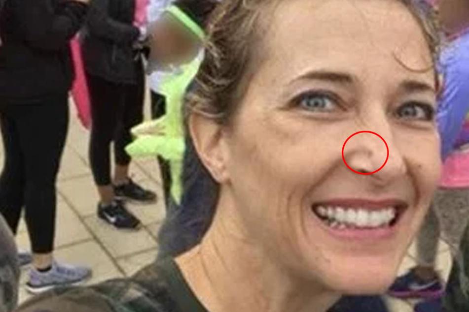 Frau entdeckt Pickel an ihrer Nase, doch die Wahrheit ist viel schrecklicher
