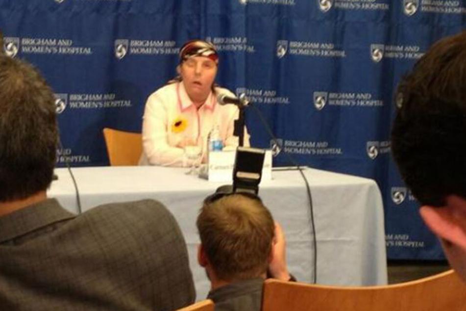 Carmen bei einer Pressekonferenz nach ihrer Gesichts-Transplantation.