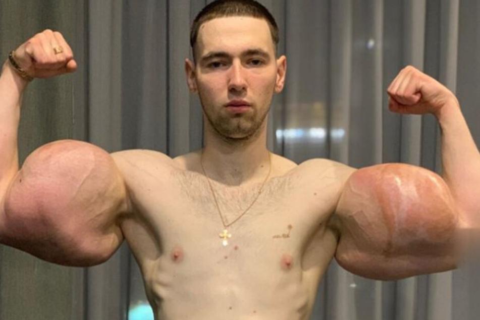 """Die Arme des MMA-Kämpfers """"Popeye"""" sind voller schädlicher Vaseline. Eine Amputation oder Schlimmeres drohten."""
