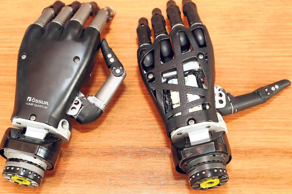 Ein Wunderwerk der Technik! Etwa 30000 Euro kostet so eine Hand. Die modernste Hand und das Vorgängermodell: Professor Meyer hat sie beide schon getestet.