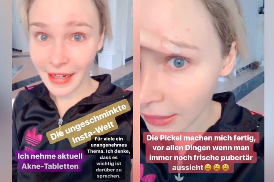 Bei Instagram zeigt sich die 27-Jährige ungeschminkt und mit unreiner Haut.