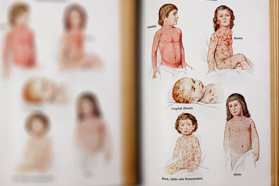 Impfgegner finden, dass Krankheiten wie Masern andere Ursachen haben.