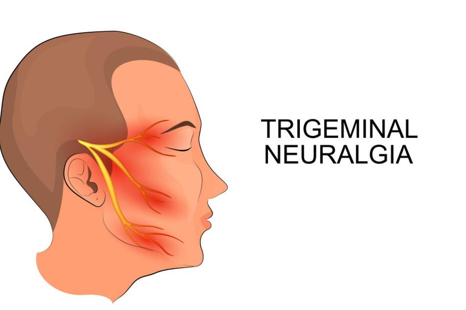 Die Darstellung zeigt den Nervus trigeminus, den fünften Hirnnerven, der bei der Krankheit gereizt wird.