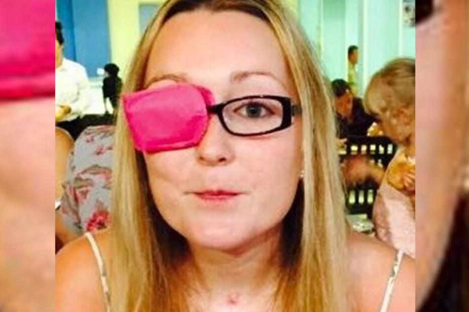 Lucy Wood (29) hatte einen Tumor in der Größe einer Zitrone direkt am Hirnstamm.