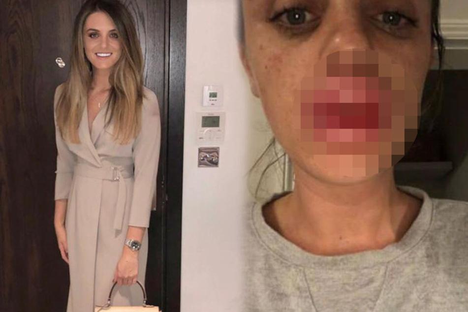 Frau lässt sich die Lippen aufspritzen: Als sie in den Spiegel schaut, traut sie ihren Augen nicht