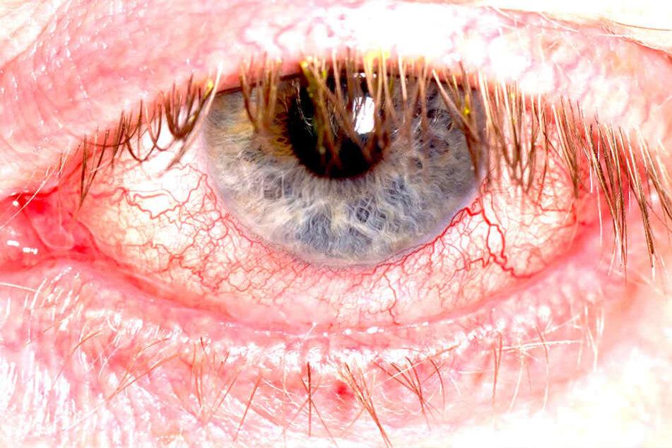 Gefährliche Augengrippe in Deutschland!