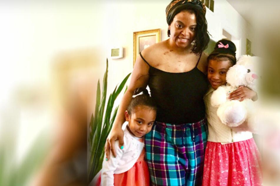 Keyia mit ihren beiden Töchtern nach der schrecklichen Attacke.