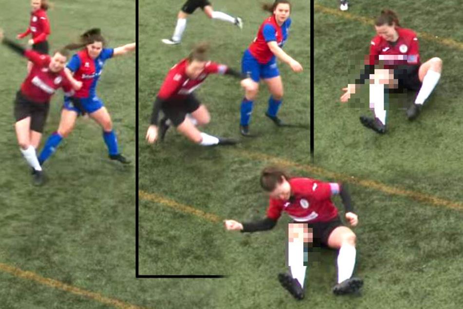 """Fußballerin mit schlimmer Knieverletzung, dann """"verarztet"""" sie sich selber und spielt weiter!"""