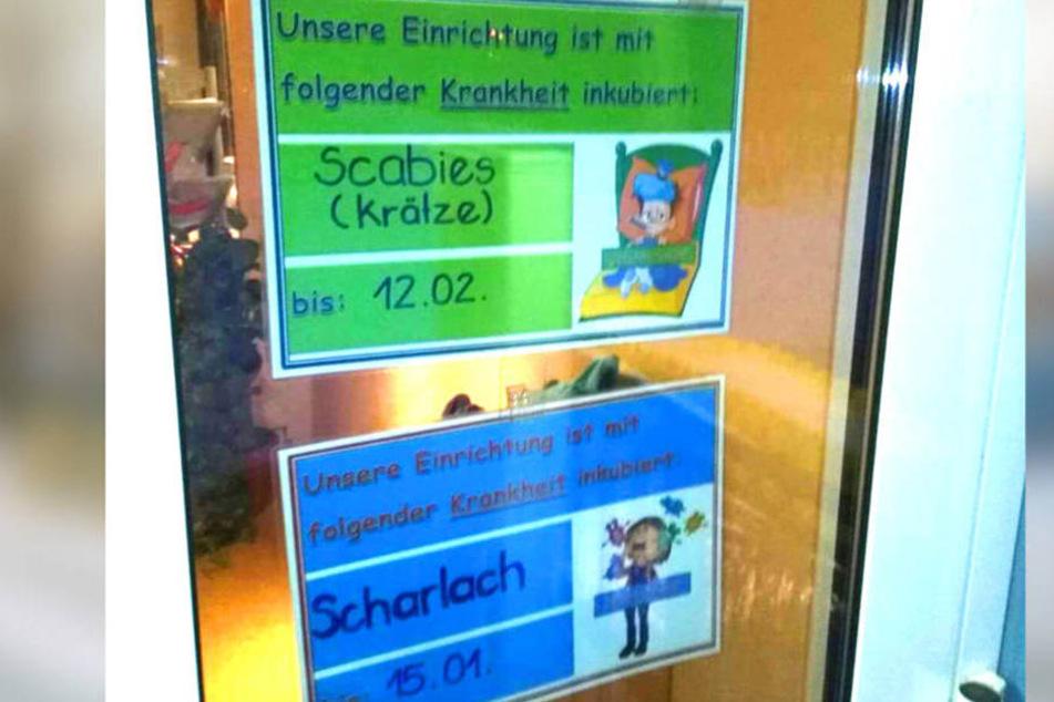 """Ein Schild warnt Eltern und Besucher in der Kita """"Sonnenschein"""" vor der von Krätzmilben verursachten Krankheit."""