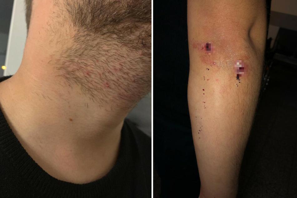 Das Foto zeigt die Würgemale am Hals und die Verletzungen am Arm des Fotografen.