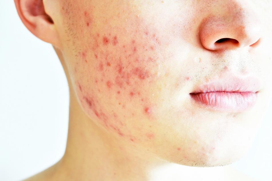 Bei zu starkem Milben-Befall kann sich die Haut rot färben. (Symbolbild)