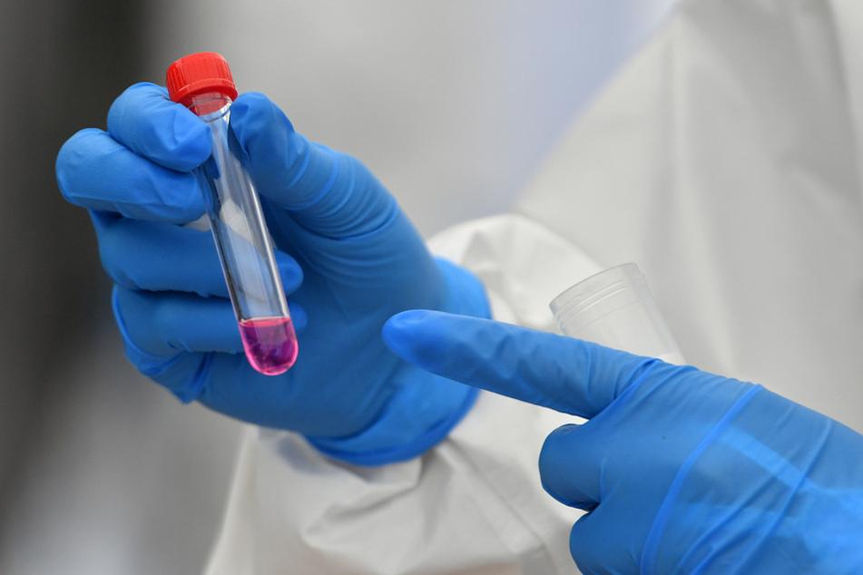 Die Wissenschaft versucht unter anderem mit Impfstoffentwicklung gegen die Pandemie vorzugehen. (Archiv)