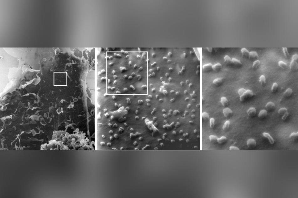 Eine mit SARS-CoV-2-infizierte Nierenzelle unter dem Heliumionen-Mikroskop (ausschnittsweise Vergrößerung von links nach rechts, ein einzelnes Virus ist etwa 100 Nanometer groß): Die Aufnahmen weisen darauf hin, dass manche Coronaviren beim Austritt aus der Zelle nur lose aufliegen, während andere Viren an die Zelle gebunden sind.