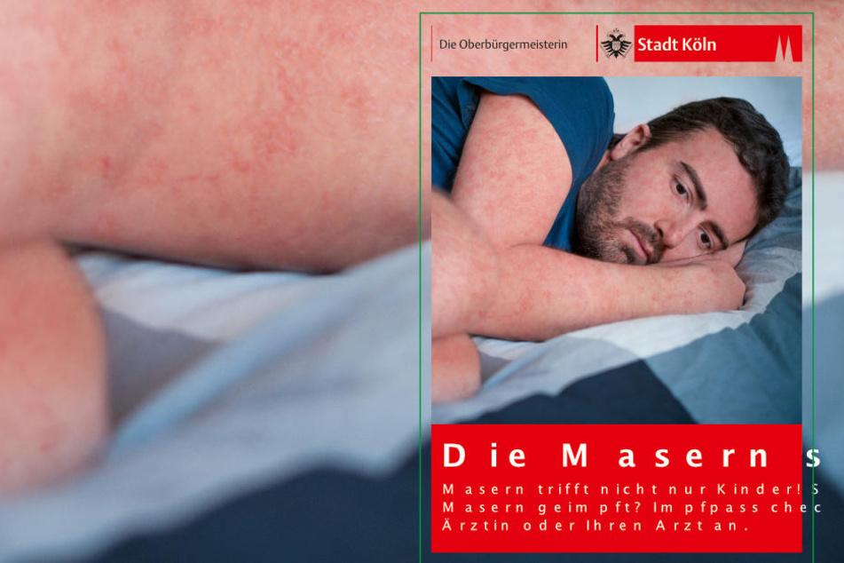 Die Stadt Köln wirbt jetzt mit Plakaten für eine Masern-Impfung.