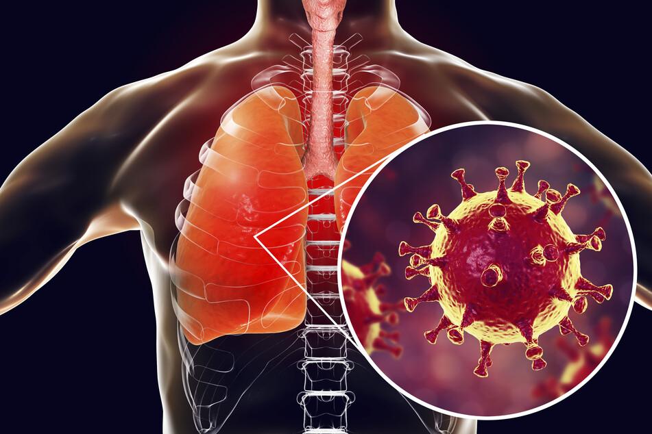 Erschreckende Aufnahme: So klingt die Lunge eines Menschen, der an COVID-19 leidet