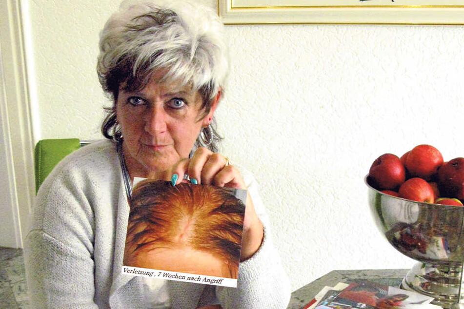 Andrea G. (61) mit einem Foto der Kopfverletzung ihres Sohnes Hardy (30).
