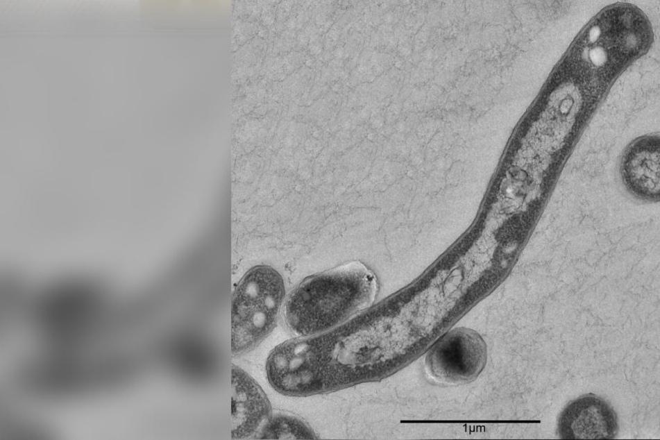 Tuberkulose kann durch Niesen oder Husten übertragen werden.