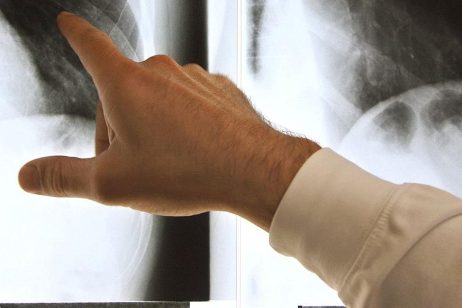 Als sie merkten, dass es sich nicht um Lungenkrebs, sondern etwas ganz anderes handelte, staunten die Ärzte (Symbolbild).