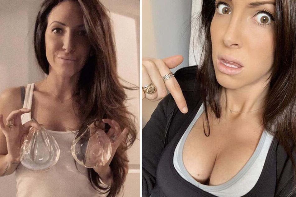 Bianca Weintraub hält ihre ehemaligen Implantate in den Händen.