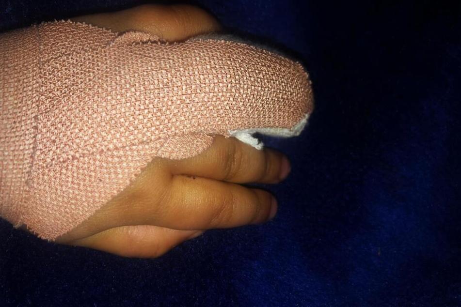 Der Finger konnte im Krankenhaus wieder angenäht werden.
