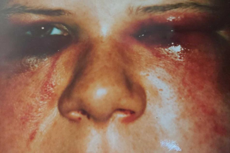 Das linke Auge zugequollen, das Gesicht von Blutergüssen übersät: So übel wurde das Missbrauchsopfer 1996 zugerichtet.