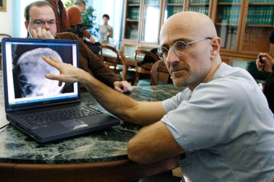 Neurochirug Sergio Canavero steckt hinter dem tollkühnen Plan.