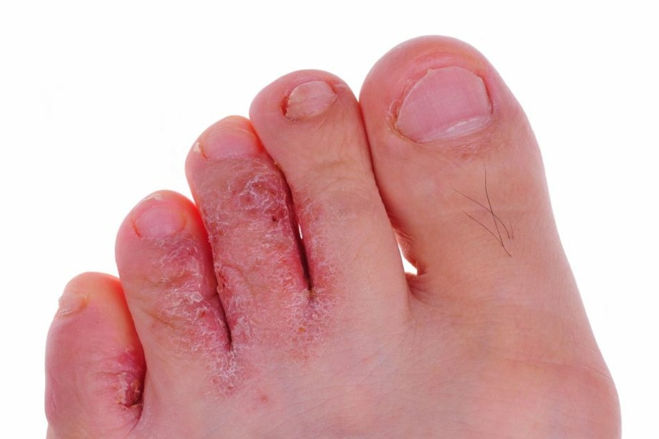 Die häufigste Fußpilz-Form: Fußpilz zwischen den Zehen.