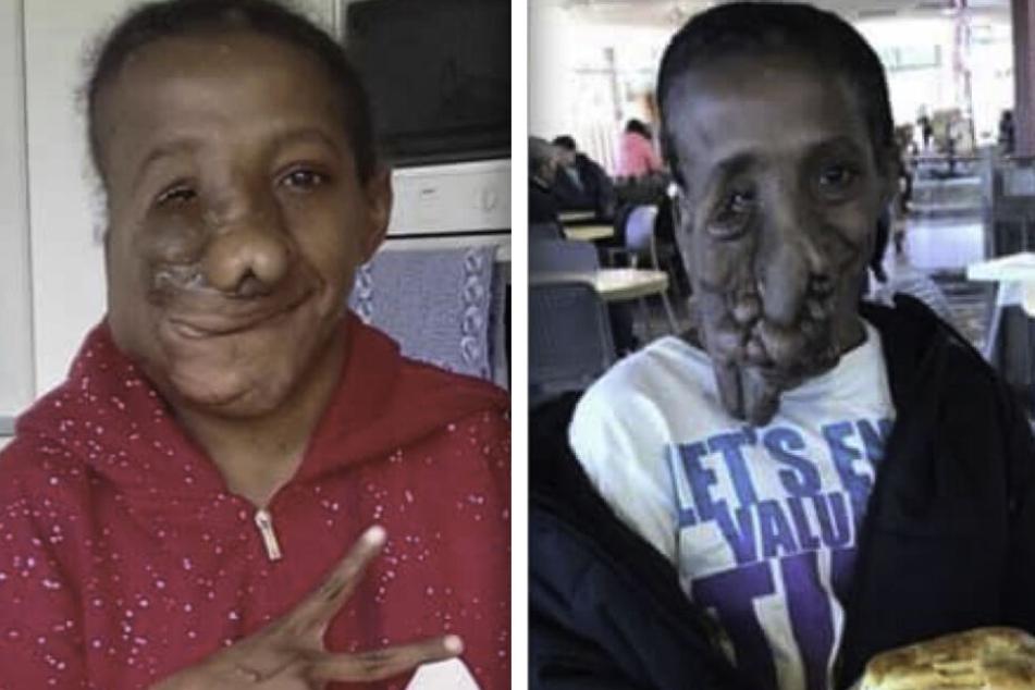 Der Eingriff hat das Leben von Natalia Apaseray verändert. (Bildmontage)