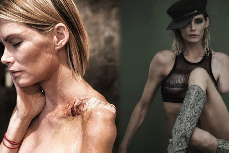 Trotz Operationen und Reha-Maßnahmen leidet die Stuntfrau noch immer unter starken Schmerzen.