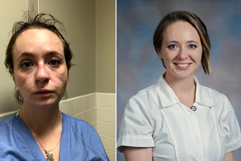 Before and after: nurse reveals what the pandemic has done to her