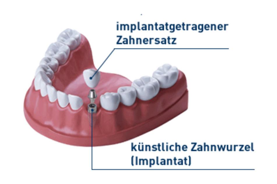 Unauffällig und bequem: Zahnimplantate sind nicht mehr unerreichbar.