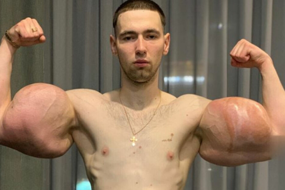 Ganze 60 Zentimeter Umfang hatten die falschen Arme des Russen.