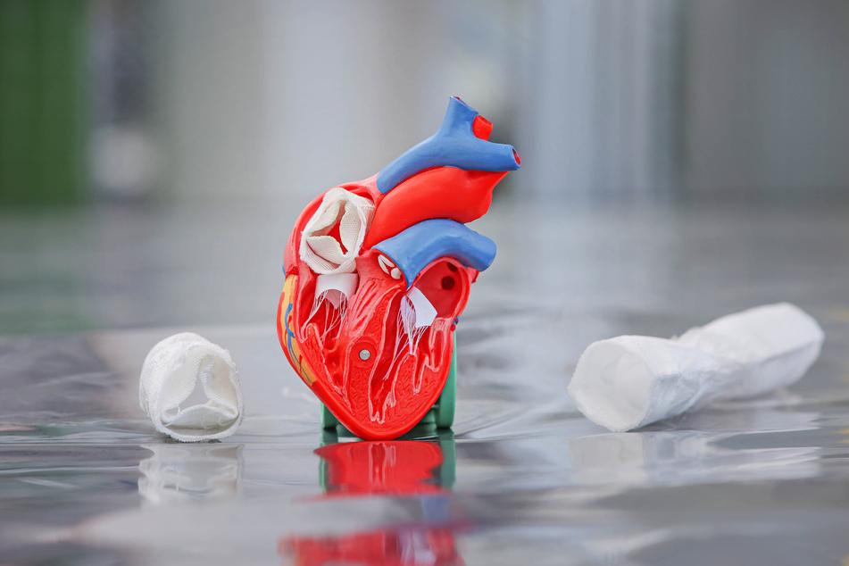 Dieses Herz-Modell zeigt, wie die textilen Herzklappen implantiert werden. Bis zur medizinischen Zulassung der Implantate werden noch mindestens fünf Jahre vergehen.