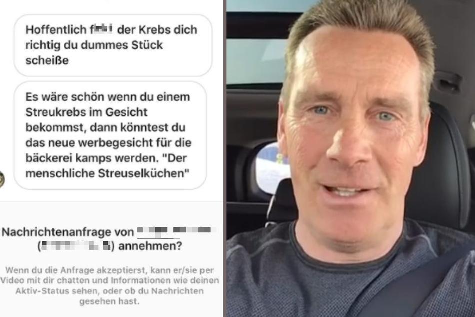 Jürgen Milski bekommt Hate nach Tumor-OP: Jetzt ist sein Test-Ergebnis da!