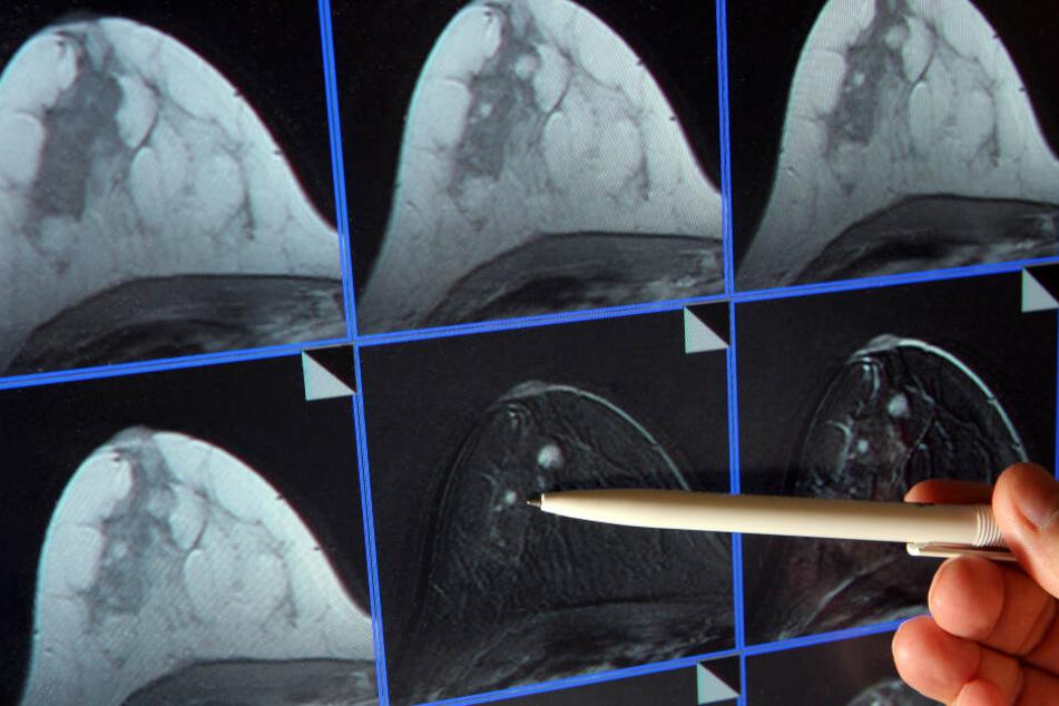 Bei diesen Bildern einer Mammographie ist ein winziger Tumor in der Brust einer Patientin zu sehen.