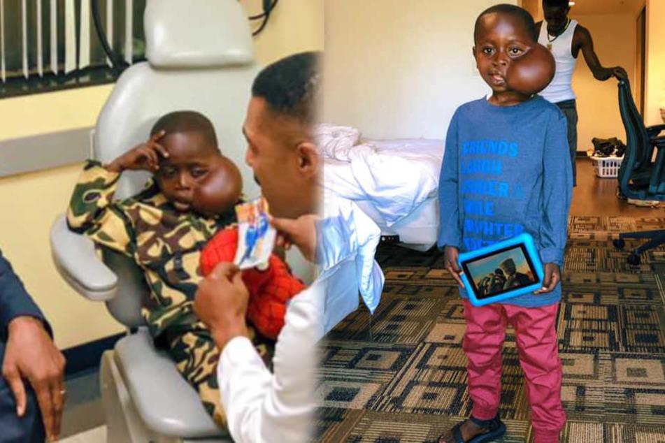 Junge mit Gesichts-Tumor wird endlich operiert, doch dann passiert das Tragische