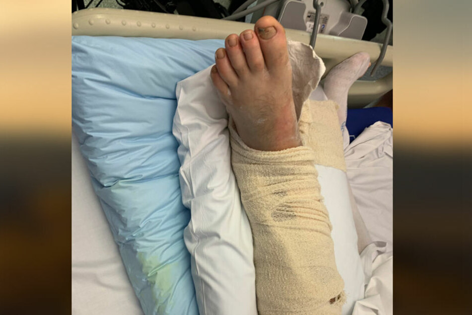 Neil Parkers Bein sieht nach der Tortour sehr mitgenommen aus.