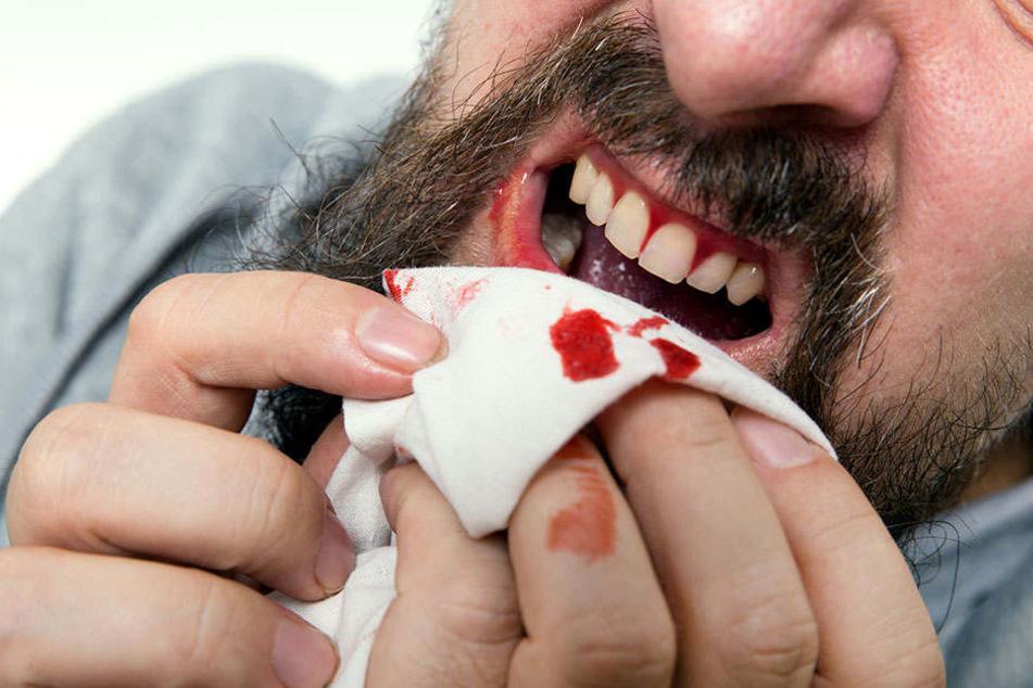 Zahnfleischbluten ist ein wichtiger Hinweis auf Parodontitis.