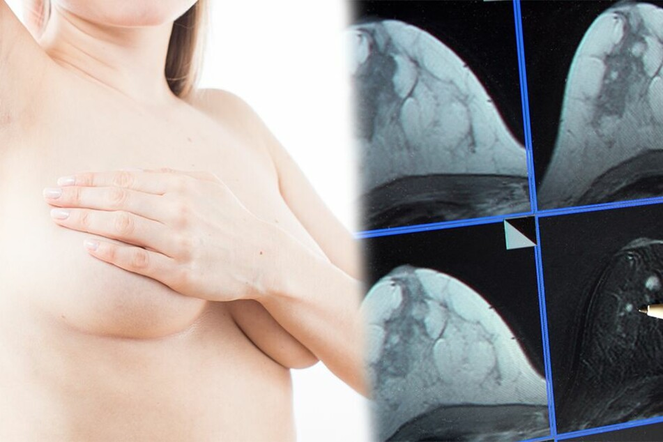 Revolution in der Brustkrebs-Therapie: Kann dieses Medikament Frauen heilen?