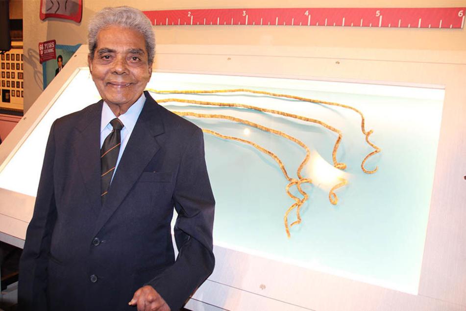 Der 82-jährige Inder hat sich nach 66 Jahren von seinen überlangen Fingernägeln getrennt.