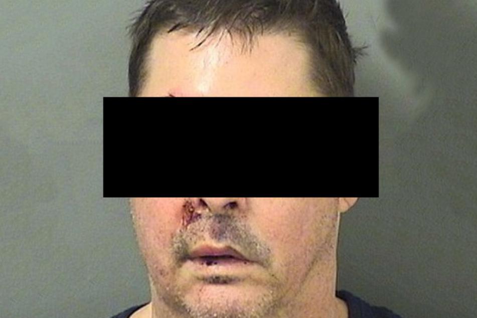 Der Perverse leistete bei seiner Festnahme Widerstand. Das büßte er mit Kratzern, blauen Augen und einer Platzwunde ein.