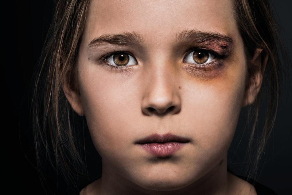 Kindesmissbrauch ist ein großes Problem, gegen das der Deutsche Kinderverein ankämpft.