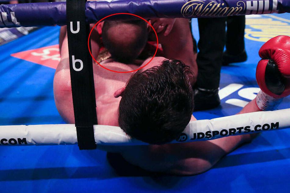 Lebenslanges Verbot droht! Was dieser Boxer macht, geht gar nicht!
