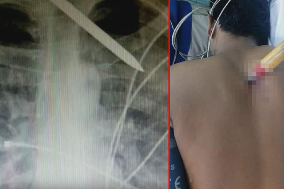 Brutaler Angriff: Ärzte müssen Mann Eispickel aus dem Rücken entfernen