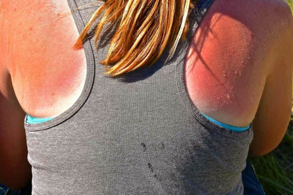 Schmerzhaft und gefährlich: Sonnenbrand sollte mithilfe von Kleidung oder Sonnencreme unbedingt vermieden werden.