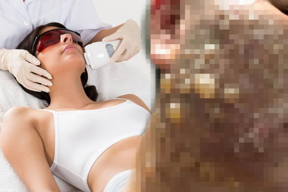 Schockierende Fotos: So sieht das Gesicht einer Frau nach einer Hautstraffung aus