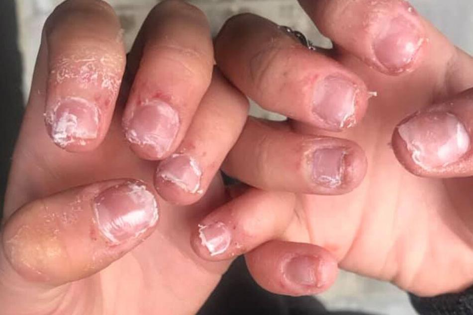Horror! Die Nägel der 17-Jährigen waren völlig zerstört.