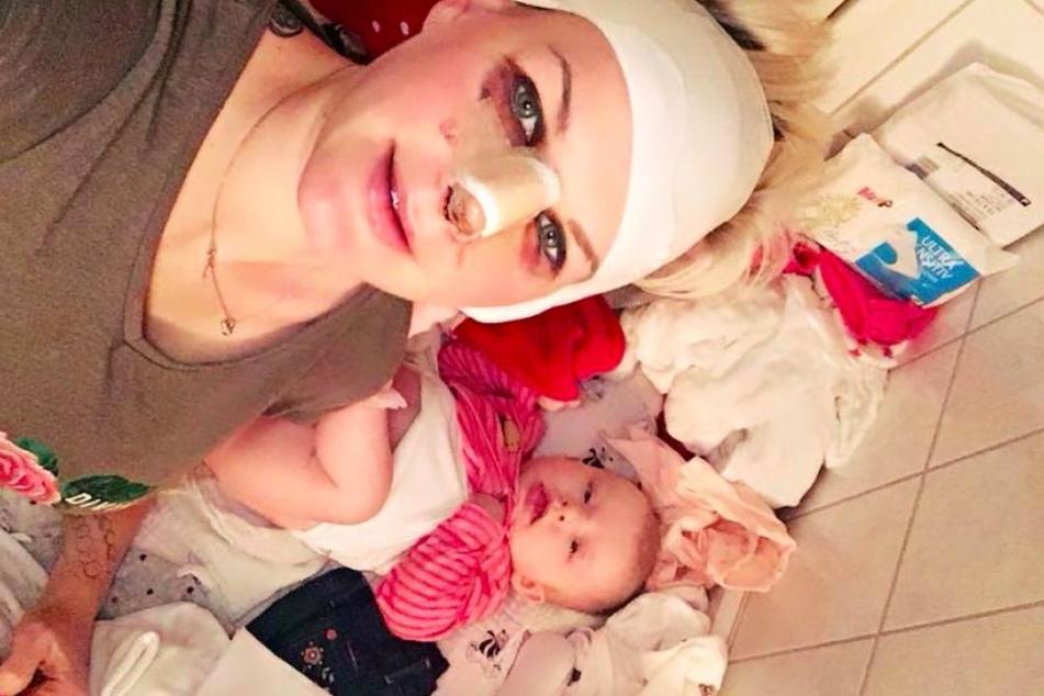 Mit Verband, Gips und Veilchen zeigt sich die Promi-Mama auf Facebook.