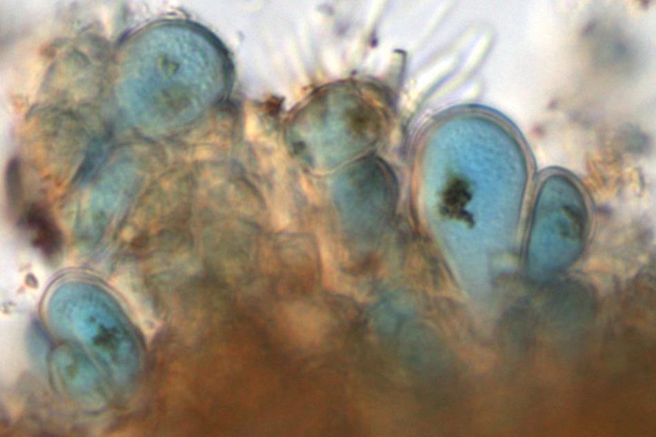 Unter dem Mikroskop erkennt man, warum die Blaualge so heißt - sie wurde der Elbe entnommen.